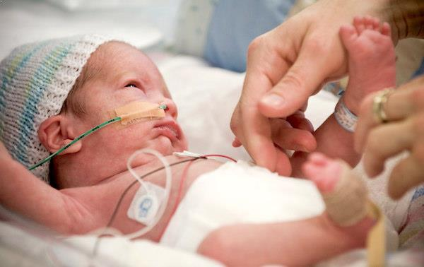 la-vision-del-bebe-prematuro