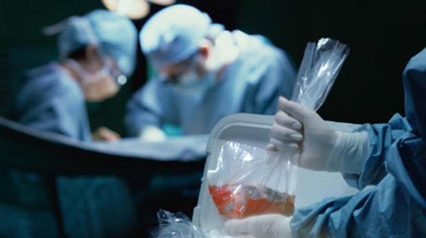 Ablación-donación-de-órganos